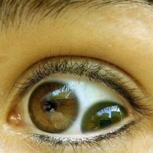 Eyes With 2 iris...rare Human Oddities, Aliens, Weird Science, Science Humor, Human Eye, Unusual Things, Crazy People, Strange People, Strange Things