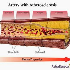 "Alessandro LittaraMODERATOR Educational - 11:27 AM #Atherosclerosis What is the difference between #Atherosclerosis and #Arteriosclerosis ? Atherosclerosis is a type of .arteriosclerosis. ""Arteriosclerosis"" is a general term for the thickening and hardening of arteries...."