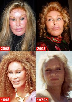 Albträume der schlimmsten plastischen Chirurgie Fotos) - FunRare - Hilarious And Witty - Celebrity Plastic Surgery Plastic Surgery Facts, Botched Plastic Surgery, Bad Plastic Surgeries, Plastic Surgery Gone Wrong, Plastic Surgery Procedures, Botox Before And After, Celebrities Before And After, Before And After Haircut, Beauty