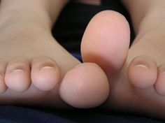 Natural Ways to Remove Corns and Calluses especially calluses during flip flop season