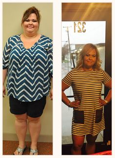 """My gastric sleeve saved my life. I was so lost I didn't know where to start…"