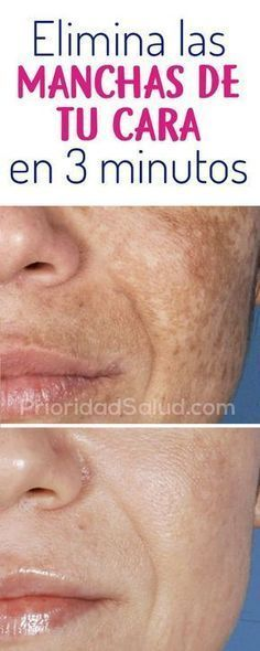 Brown Spots On Skin, Skin Spots, Dark Spots, Beauty Care, Beauty Skin, Beauty Hacks, Skin Tips, Skin Care Tips, How To Get Rid