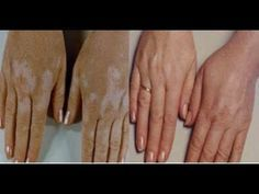 For the treatment of Vitiligo: A Pilot Study. Because of these beliefs and taboos patients with Vitiligo desperately try to get rid themselves of Home Treatment, Psoriasis Symptoms, Laser Clinics, Skin Care Clinic, Autoimmune Disease, Natural Treatments, Good Skin, God, Home Remedies
