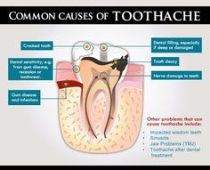 Common Causes of a #Toothache! #oralhealth #dental
