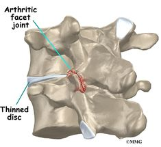 Introduction Arthritis of the lumbar facet joints can be a source of significant low back pain. Aligned on the back of the spinal column, the facet joints. Pilates, Middle Back Pain, Severe Back Pain, Degenerative Disc Disease, Arthritis Pain Relief, Sciatica Pain, Back Pain Relief, Chronic Pain, Crps