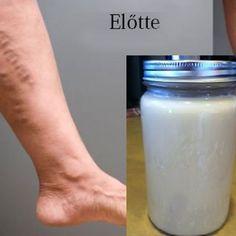 Varázslatos recept visszér és trombózis kezelésére, csupán 2 hozzávalóból! - Blikk Rúzs Glass Of Milk, Health Fitness, Drinks, Food, Life, Therapy, Health, Drinking, Beverages