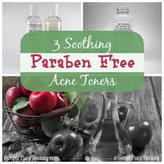3 Soothing Paraben Free Acne Toners