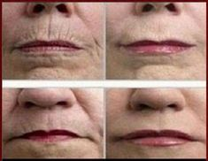 A small wrinkle on the young face creates fear of aging. As we grow we get wrinkles. Most of us get wrinkles first and then rush to get costly and painful treatments done to remove them. Prom Makeup Looks, Fall Makeup Looks, Personal Beauty Routine, Anti Aging Creme, Aging Cream, Wrinkle Remedies, The Face, Les Rides, Wrinkle Remover
