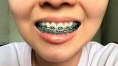 The Best Orthodontist Near Me Cute Braces Cute Braces Colors Dental Braces