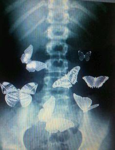 Farfalle ovunque...