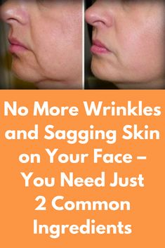 No More Wrinkles and Sagging Skin on Your Face – You Need Just 2 Common Ingredients As you are getting older, your skin ages and natural elements reduce its tightness and elasticity. Fortunately, these two simple ingredients can fight against wrinkles and Beauty Secrets, Beauty Hacks, Beauty Tips, Beauty Care, Skin Care Routine For 20s, Sagging Skin, Sagging Cheeks, Oily Skin, Glowing Skin