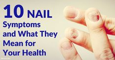 Vertical ridges or white spots on your nails are usually harmless, but black streaks in your nails may be due to melanoma skin cancer.