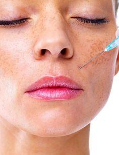 El Plasma Rico en Plaquetas produce una bioestimulación facial, de esta manera se consigue la atenuación de las arrugas, aumento del grosor y tersura de la piel para lograr un aspecto más joven.