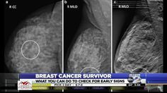 An army veteran, business owner, and now a breast cancer survivor, Janetta Olasenishared her story four years after being diagnosed with and surviving the disease.