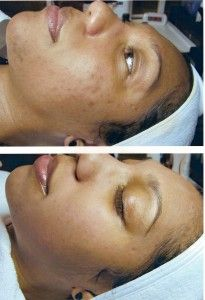 get rid of dark spots at home. Great for all skin types. Sunscreen after each tip will prevent future damage  I wonder if this will work on stretch marks?