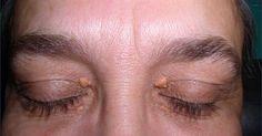 Für viele sind Fettablagerungen am Augenlid, sogenannte Xanthelasmen, nur ein ästhetisches Problem. Dass es sich aber hierbei um ein Warnsignal handeln kann, wussten Sie bestimmt nicht.