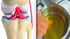 Receta para renovar tus huesos, tendones y articulares en 1 semana o mejor dicho en tiempo récord.