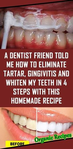 Natural Home Remedies A Dentist Friend Told Me How To Eliminate Tartar, Gingivitis And Whiten My Teeth In 4 Steps With This Homemade Recipe Teeth Health, Healthy Teeth, Oral Health, Dental Health, Health And Wellness, Health Tips, Health Benefits, Dental Hygiene, Women's Health