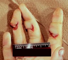 Forensic Autopsy of Sharp Force Injuries: Overview, Definitions, Scene Findings Trauma, Medical Photos, Hand Injuries, Forensic Science, Criminology, Forensics, Serial Killers, Medical Conditions, Death