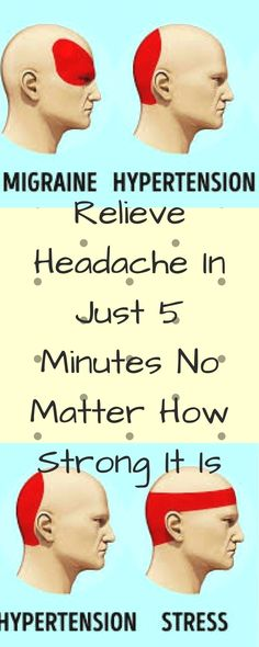 Relieve Headache In Just 5 Minutes No Matter How Strong It Is Daily Health Tips, Health Advice, Health And Wellness, Health Care, Health Fitness, Wellness Tips, Mental Health, Lisa, Natural Headache Remedies