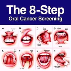 Screening yourself for oral cancer is as simple! Cut down your risk of oral cancer by quitting smoking, seeing your dentist regularly, brushing, flossing, and using alcohol free mouthwash.  Contact your doctor if you notice: White or red patches in your mouth, or a mouth sore or lesions that won't heal Abnormal bleeding in your mouth or loose teeth Pain when swallowing or difficulty swallowing A lump in your neck or an earache