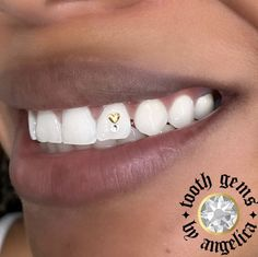 Gold and crystal tooth gems Halo Tattoo Collective