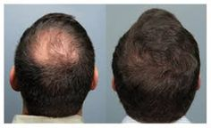 How does Laser Hair Re-Growth work? Find out how these painless treatments can help you: