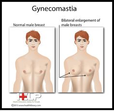 You can read more about bilateral gynecomastia below.  http://guidetomanboobs.com/what-is-bilateral-gynecomastia/