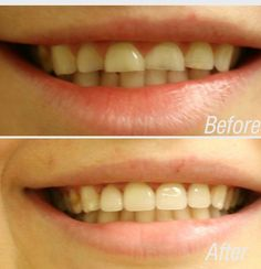 All about laser teeth whitening Teeth Whitening Remedies, Best Teeth Whitening, Whitening Kit, Dentist Nyc, Celebrity Dentist, Environmental Health, Health Department, Cosmetic Dentistry, White Teeth
