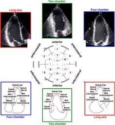 Risultati immagini per rotation angle from 4 chamber to 2 chamber view in echocardiography Cardiac Sonography, Heart Circulation, Vascular Ultrasound, Nurse Betty, Heart Echo, Pet Ct, Np School, Student Info, Critical Care Nursing