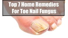 Top 7 Home Remedies For Toe Nail Fungus