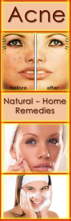 There are many home remedies that you can use to treat acne and to prevent it. While chemical products can work, there are natural ways of fighting off these infections as well. #acne #natural #remedies #skin #health