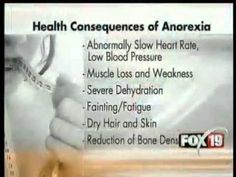 Anorexia nervosa is a serious, potentially life-threatening eating disorder characterized by self-starvation and excessive weight loss. The body is denied the essential nutrients it needs to function normally. The risk for heart failure rises as heart rate and blood pressure levels sink lower and lower. Reduction of bone density (osteoporosis), which results in dry, brittle bones is common. Muscle loss and weakness, dry skin, hair loss, and severe dehydration, which can result in kidney…
