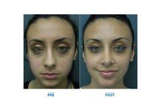 Chirurgia Estetica Dalmazia Michele Pascali - Medicina Estetica Roma - Plastic surgery makeovers