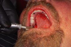 Dental Forum, Online Dental Education - Case Details: 2 Important Pearls - Full Arch Implants Implant Dentistry, Dental Implants, Facial Aesthetics, Missing Teeth, Case