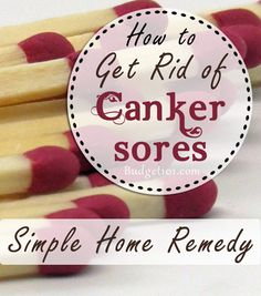 Homemade Canker Sore Remedy - PLEASE NOTE that the match should NOT be lit!!! lol Cold Home Remedies, Natural Health Remedies, Canker Sores, Health And Beauty Tips, Health Tips, Tongue Sores, Healing Cold Sore