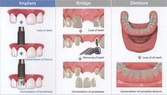 Dental Implants Vs. Dental Bridges  http://www.drjlv.com/specialty-dental-services/dental-implants-las-vegas/  #dentalimplants #dentalbridges