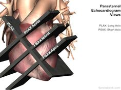 Image result for parasternal short axis ultrasound