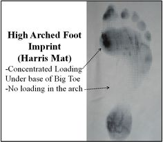 """A high arch foot is known in medical terms as a """"subtle cavus foot"""". People with high arch feet tend to be very stiff through the midfoot, with very little movement through the main midfoot joints (ex. the talo-navicular joint). The heel tends to be pointed inward in what is known as a varus position ... Read more"""