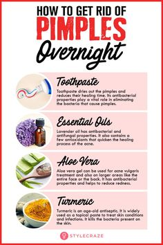 How To Get Rid Of Pimples (Acne) Overnight Fast To Get Rid Of Forehead Acne - zahnpasta Small Bumps On Forehead, Home Remedies For Pimples, Overnight Pimple Remedies, Cystic Acne Remedies, Beauty Hacks For Pimples, Homemade Acne Remedies, Natural Remedies For Acne, Back Acne Remedies, Blemish Remedies