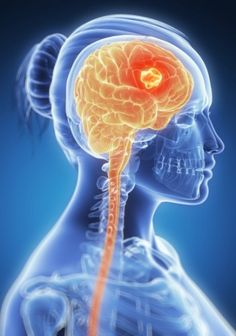 Dr.clinic: Brain Cancer Symptoms