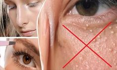 If you have white balls on the face they are calledmiliumcysts,and it forms when the keratin gets trapped in the skin. You should be very careful with cosmetics that are rich in keratin or fat that stay lodged in the … Read More