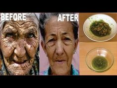 A VERY STRONG TREATMENT FOR WRINKLES, ANTI AGEING, EYE CIRCLE, FINE LINES TREATMENT - YouTube