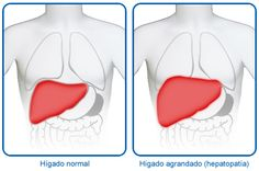 Causas de un hígado agrandado. www.farmaciafrancesa.com