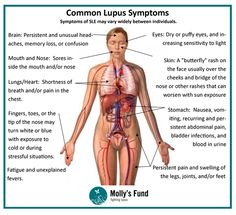 Lupus, autoimmune disease... Many with Lupus have found the answer...you can too