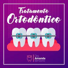 Ortodontia é o ramo da odontologia especializado no diagnóstico, prevenção e tratamento das irregularidades dentais e faciais. O termo técnico para estes problemas é má-oclusão , que significa uma …