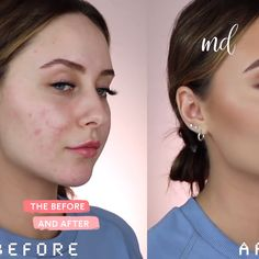 Step-by-step face makeup look! Step-by-step face makeup look! Pale Skin Makeup, Contour Makeup, Face Makeup, Covering Acne With Makeup, Makeup To Cover Acne, Makeup For Acne, Birthday Makeup Looks, Blonde Haare Make-up, Make Up Gesicht