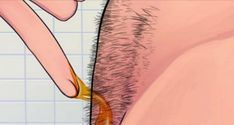 How To Naturally Remove Body Hair Permanently ( No Waxing Or Shaving )