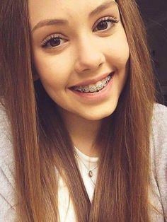 Cute Girls With Braces, Cute Braces, Brace Face, Teen Models, Snowflakes, Teeth, Make Up, Smile, Hair