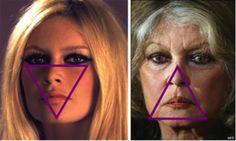 Brigitte Bardot & Facelifts: The plastic surgery triangle